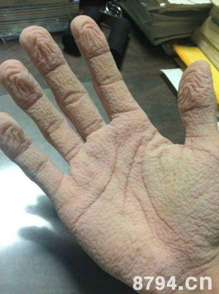 为什么手泡水久了会变皱? 揭秘手泡水很为什么容易皱