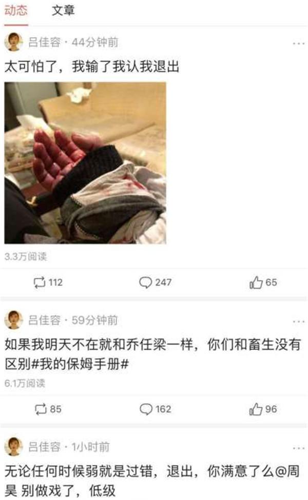 吕佳容手受伤原因另有蹊跷